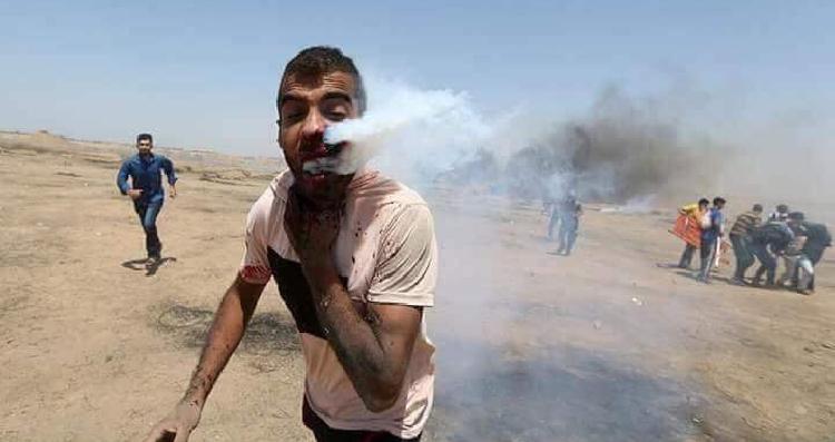 بتوجيهات ملكية.. نقل مصاب من غزة أصيب بقنبلة دخانية إلى المدينة الطبية