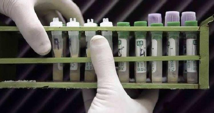 العلماء يبدو تفاؤلهم بعد اختبار لقاح فيروس نقص المناعة المكتسبة (الإيدز)