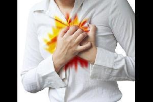 كيف يمكن علاج حرقة المعدة؟
