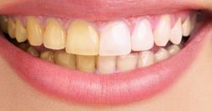 وصفة سحرية لعلاج اصفرار الاسنان