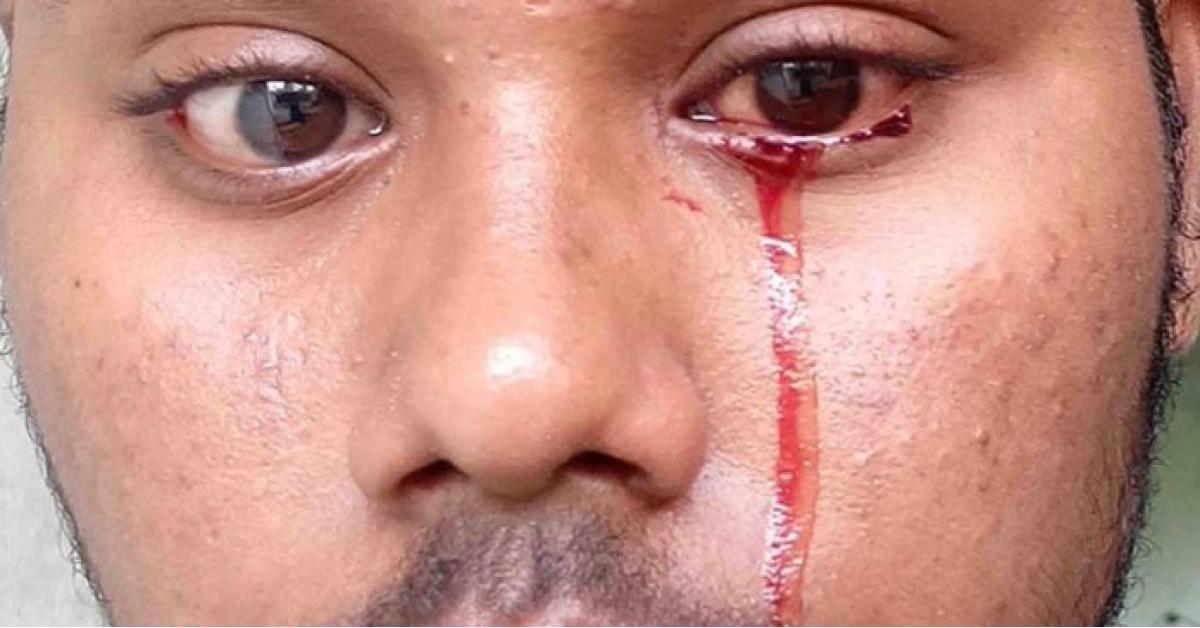 شاب ينزف دما من عينيه والأطباء عاجزون عن تفسير السبب