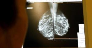 فحص جديد للكشف المبكر عن السرطان