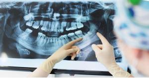 سبب مرض ألزهايمر قد يعيش داخل فمك