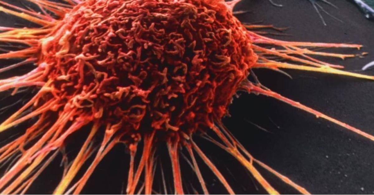 """اكتشاف """"المنشأ الأصلي"""" لمرض السرطان"""