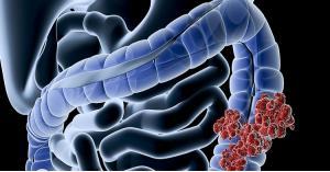 مواد غذائية تمنع الإصابة بالسرطان
