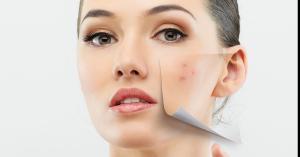 اسباب ظهور الحبوب البيضاء على الوجه وطرق علاجها