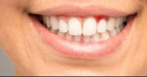 هل يؤثر خروج الدم من الفم على الصوم؟