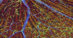 ابتكار جديد قد يُحدث ثورة في علاج السرطان!