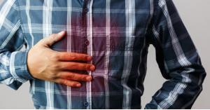 علاج حرقة المعدة في رمضان