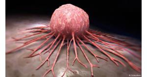 أربع عادات تؤدي إلى السرطان