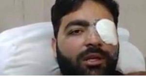 """""""صحفي"""" يفقد عينه اليسرى بسبب رصاص الاحتلال.. صور"""