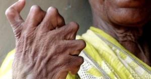 مأساة مرأة تملك 31 اصبعا