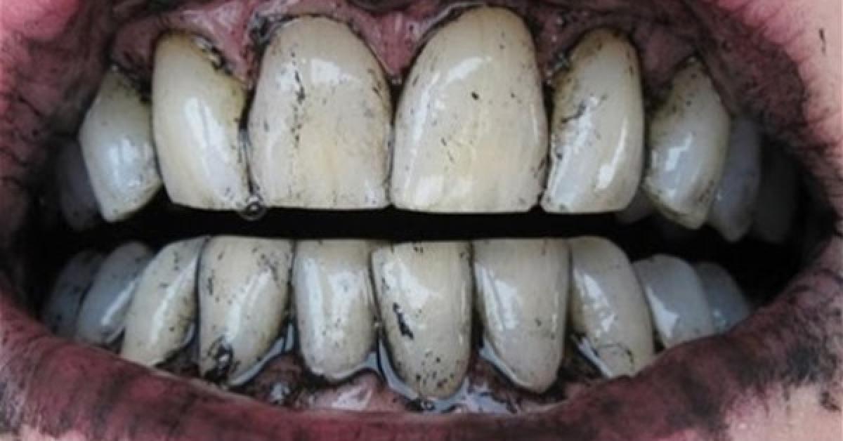 احذر .. الفحم خطر جدًا على الأسنان