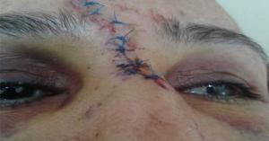 ضرب امرأة ثلاثينية بوحشية غير مسبوقة و نقلها للمستشفى
