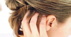 أسباب حكة فروة الرأس