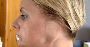 امرأة بلا أذن.. والسبب عادة خطيرة وأخطاء طبية