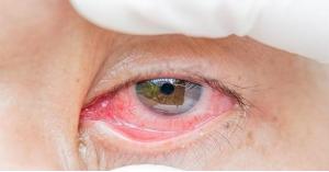 كورونا يمكن أن يعيش في العينين لأسابيع