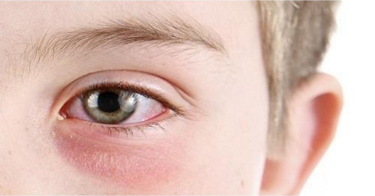 هكذا يدخل فيروس كورونا إلى العين