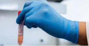 اختبار 4 أدوية جديدة لعلاج كورونا