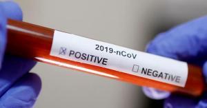 تسجيل إصابات جديدة بفيروس كورونا في المملكة