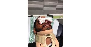 لماذا يتعمد الاحتلال إطلاق النار على العيون؟