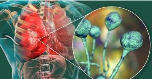 الصحة: الفطر الأسود سببه نقص المناعة