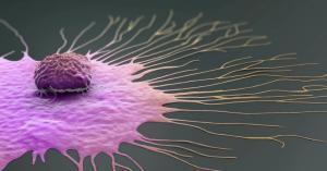 السرطان ينتشر في البلدان العربية بوتيرة تنذر بالخطر