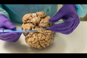 حدد العلماء ثلاثة جينات، لعبت دورا محوريا في تطور الإنسان، وهو الزيادة الملفتة في حجم الدماغ التي سهلت التقدم المعرفي الذي ساعد على تحديد