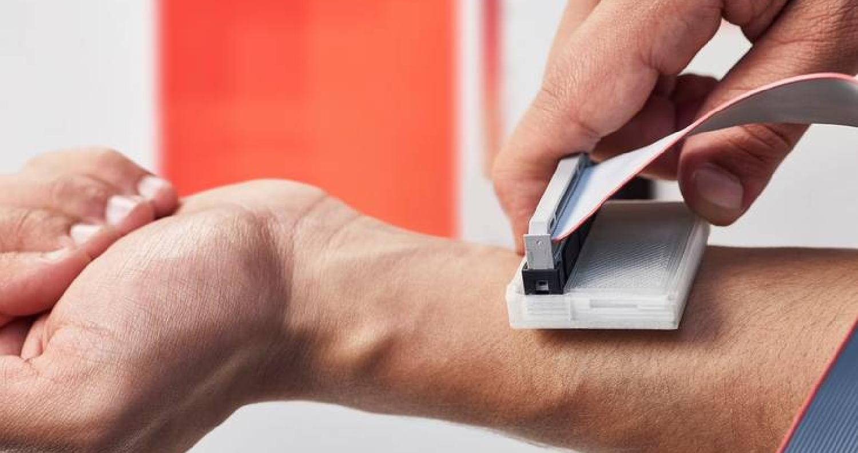 """اخترع عدد من طلاب جامعة """"ماكماستر"""" الكندية جهازا قادرا على تشخيص سرطان الجلد في مراحله الأولية، وأطلق على الجهاز اسم """"ذا سكان""""."""